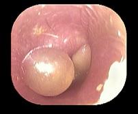 急性中耳炎(重症)